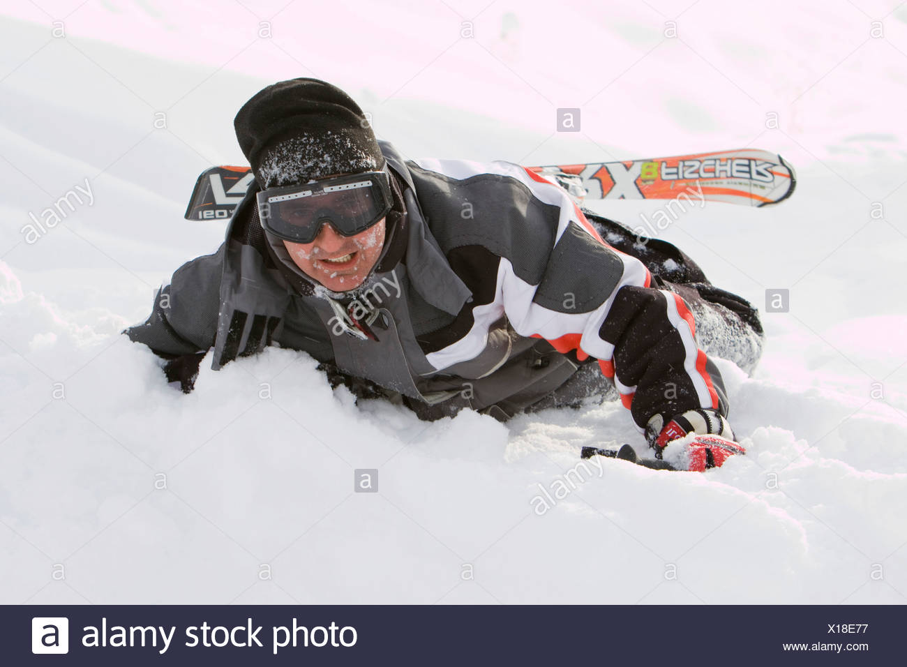 Skier, without a helmet, after a fall Stock Photo