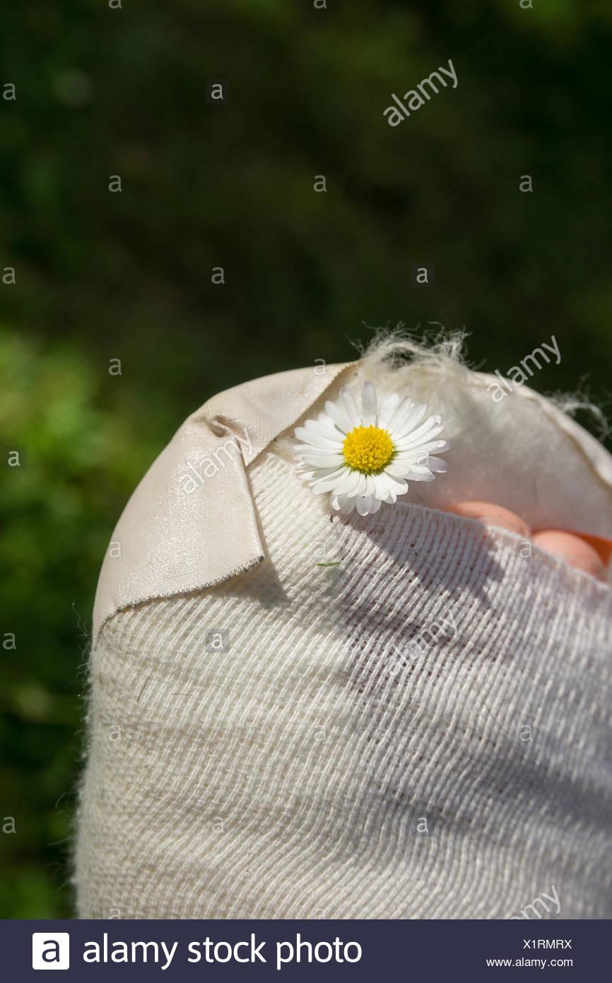 Gipsfuß eines Kindes Stock Photo