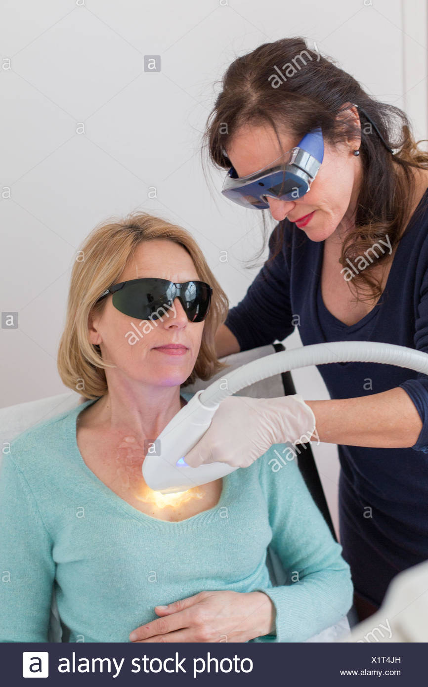 Fractionated laser CO2. Here, treatment of wrinkles of the neckline. - Stock Image