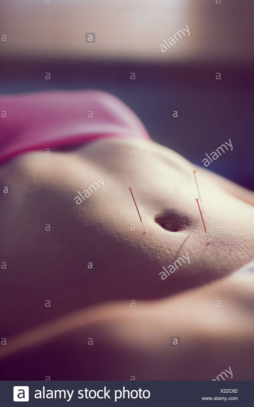 Young woman getting acupuncture treatment Stock Photo
