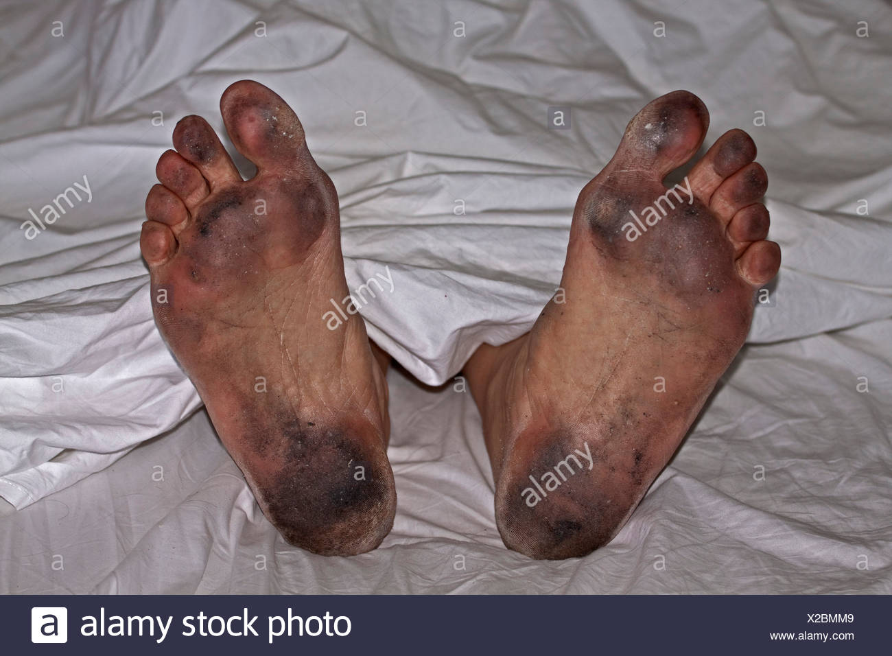 Ill-groomed dirty feet in white sheets, personal hygiene - Stock Image