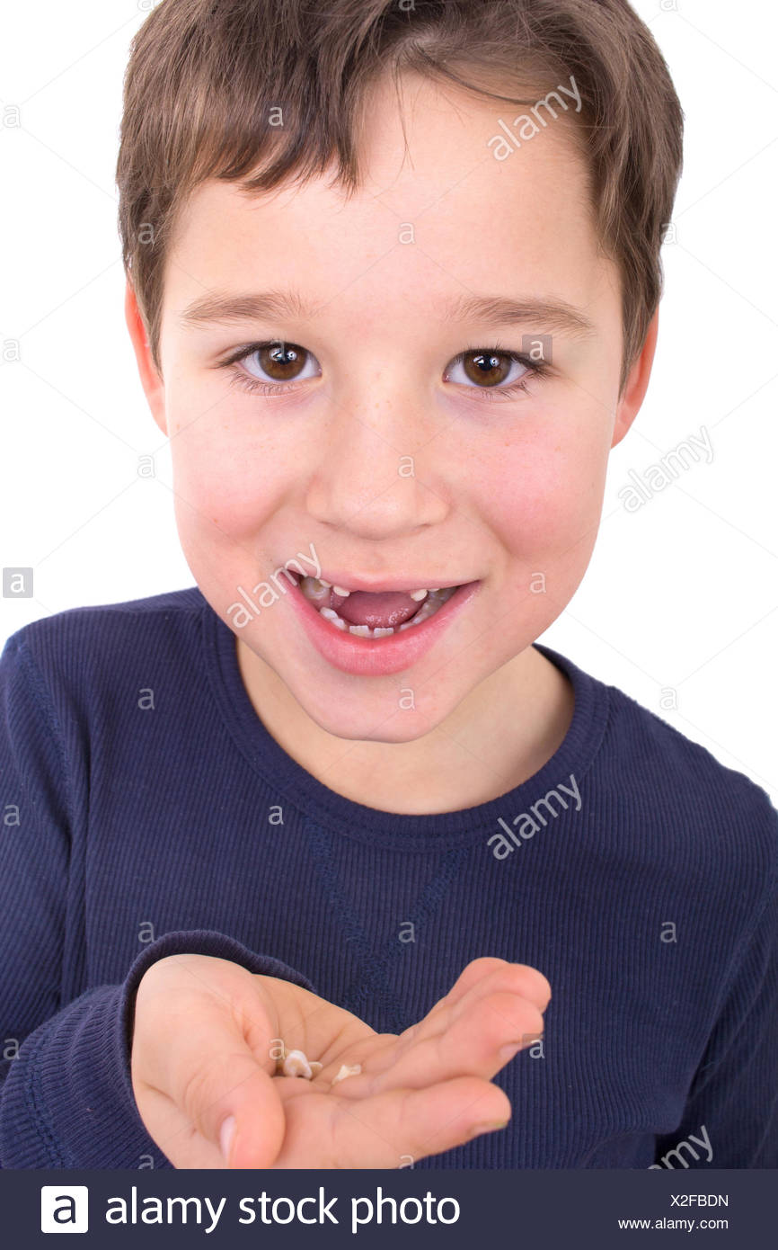 Little boy without incisors - Stock Image