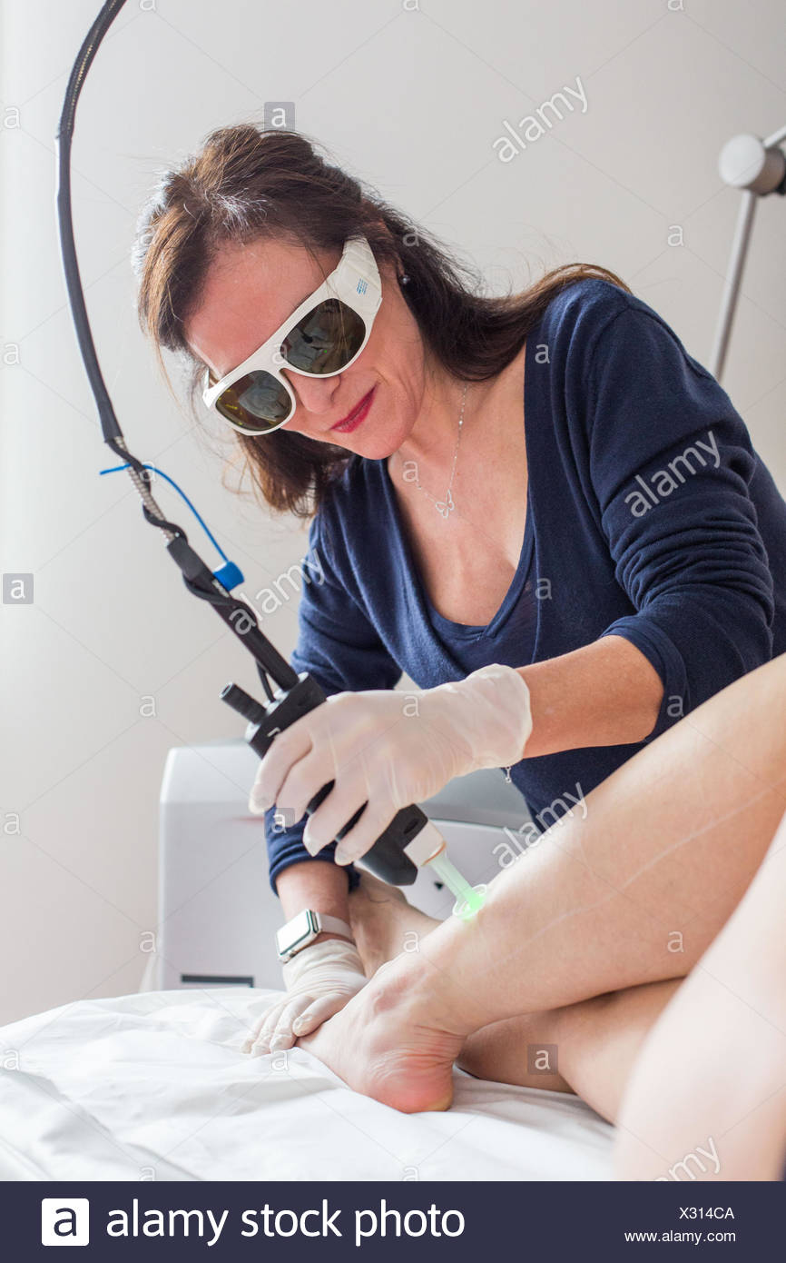 Permanant hair removal with laser. - Stock Image