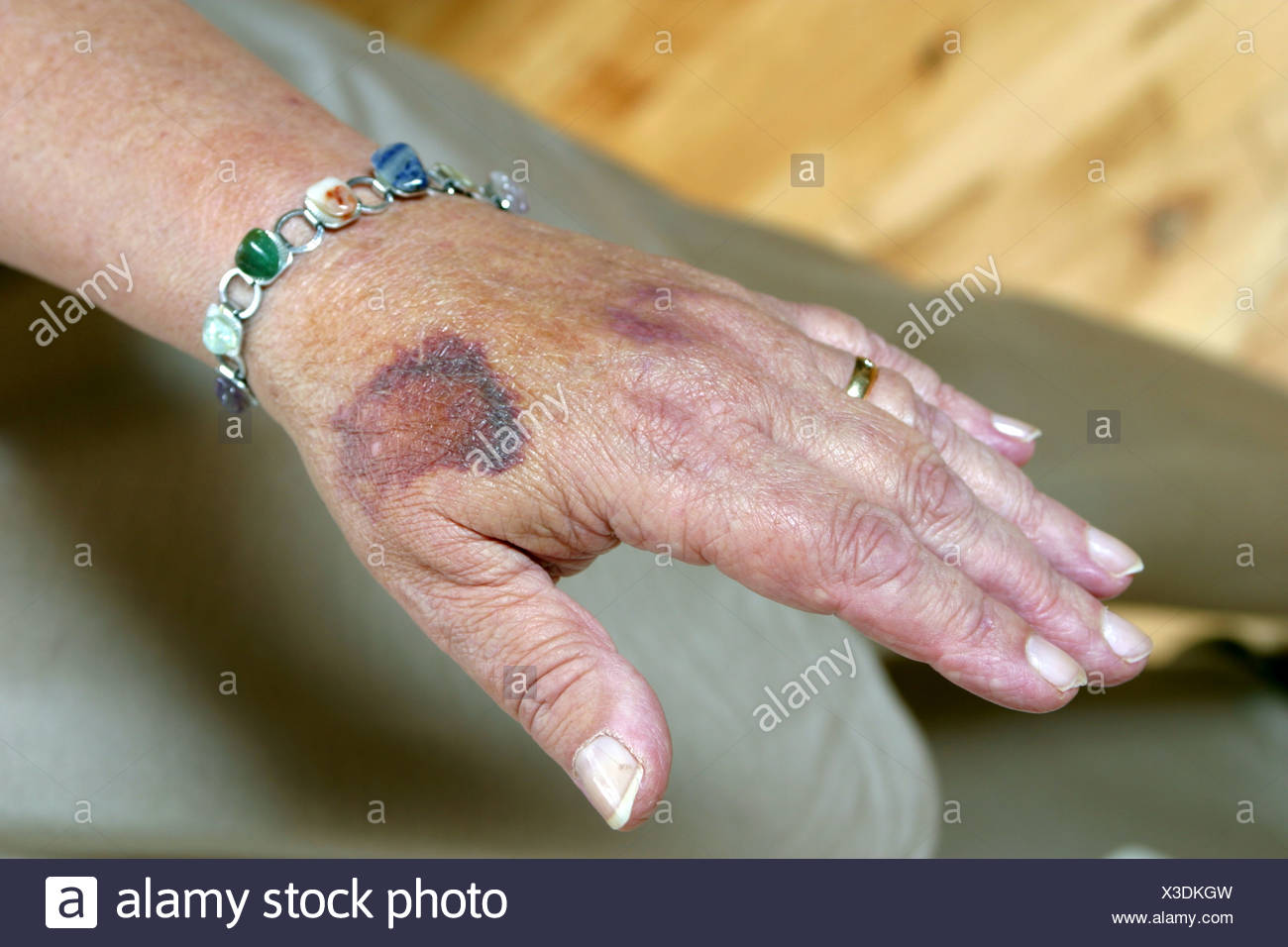 Bruised Hands Stock Photos & Bruised Hands Stock Images - Alamy