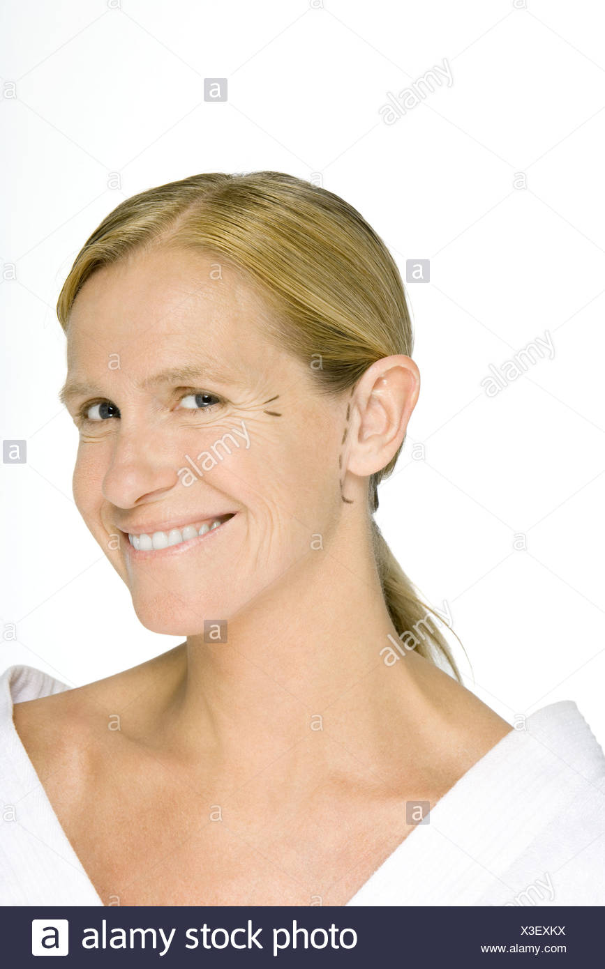 Woman with plastic surgery markings on face, smiling at camera - Stock Image