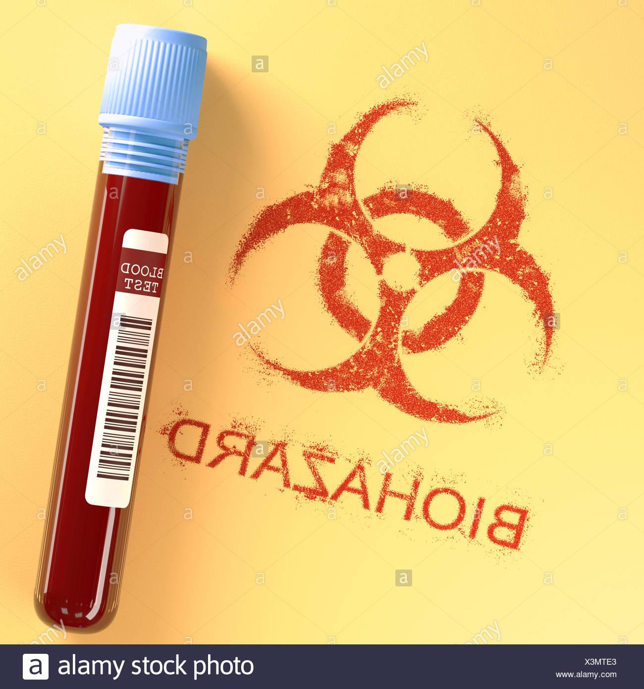 Test tube with contaminated blood, illustration. - Stock Image