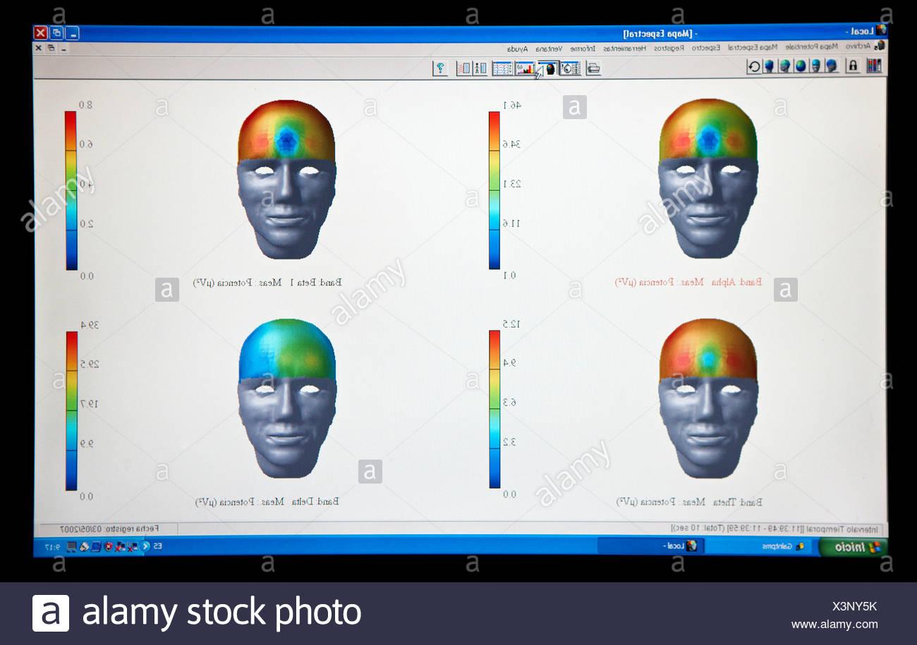 Cartography, Electroencephalography, Neurological examination. Hospital Policlinica Gipuzkoa, San Sebastian, Donostia, Euskadi, - Stock Image