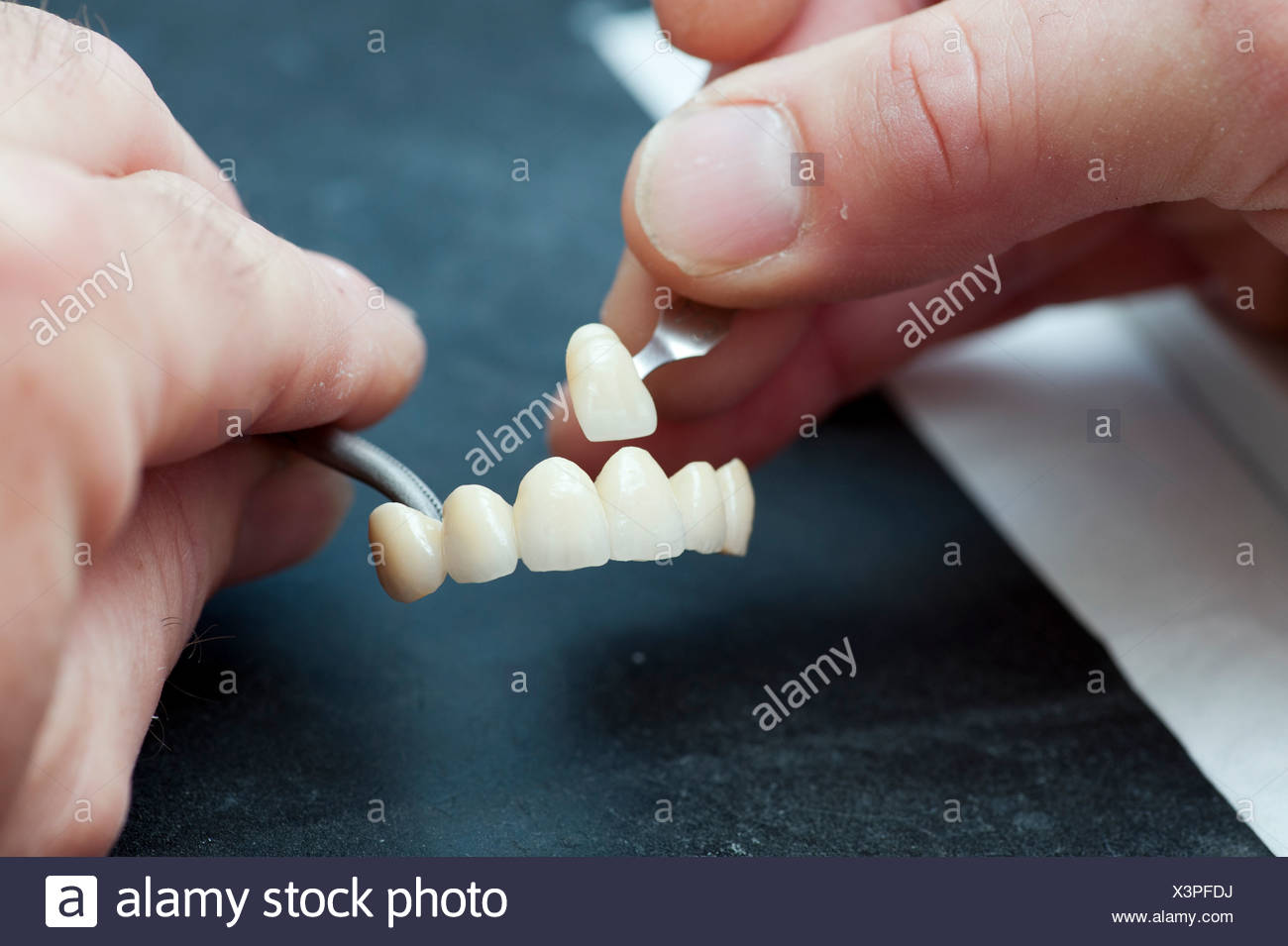 Color comparison of the dental crowns - Stock Image