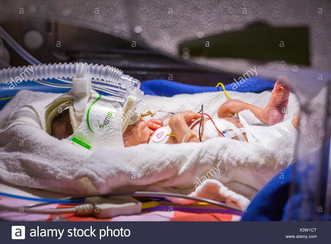 Premature newborn baby undergoing ultraviolet light treatment for jaundice. - Stock Image