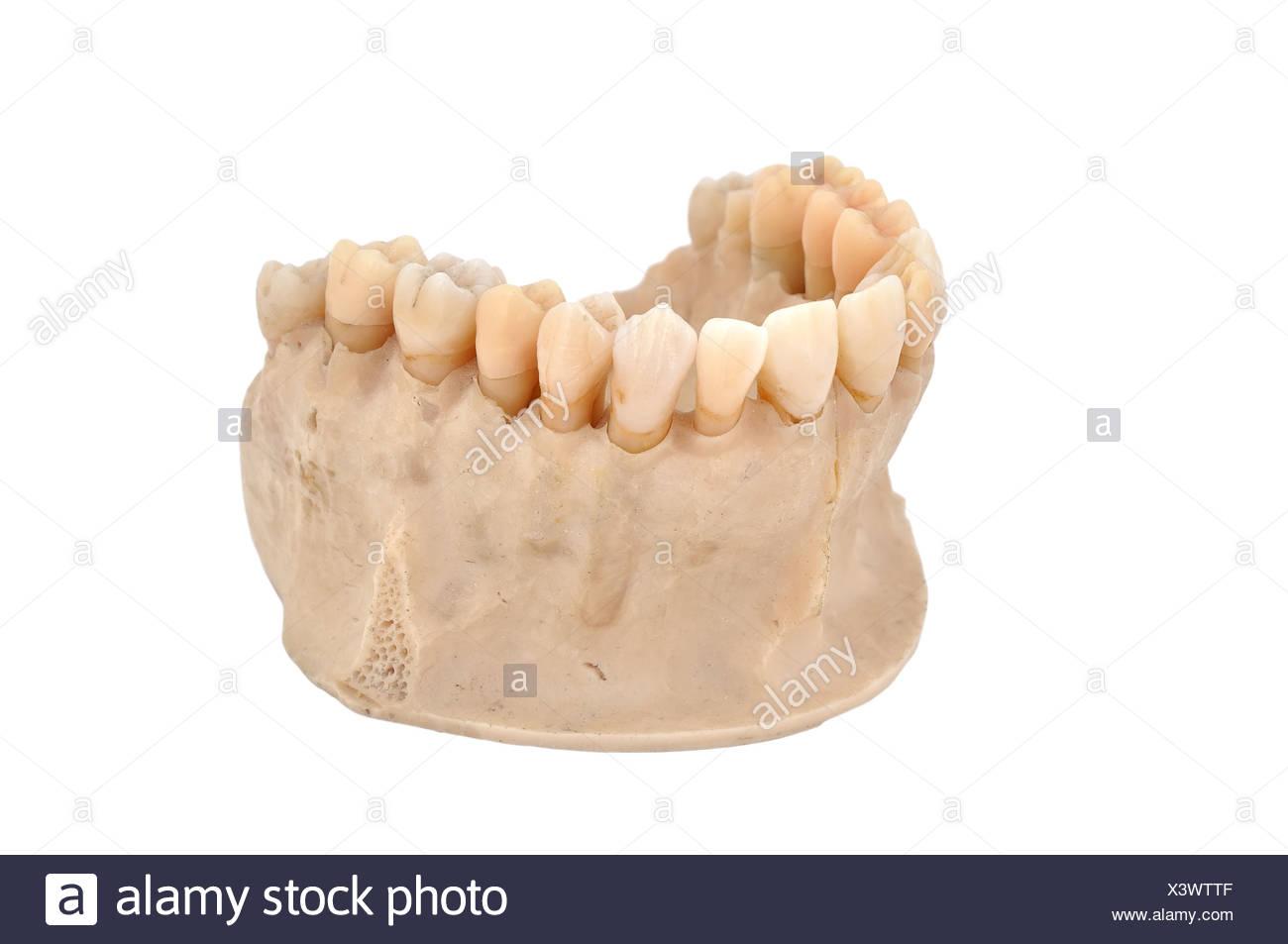Upper Jawbone Stock Photo 277778159 Alamy