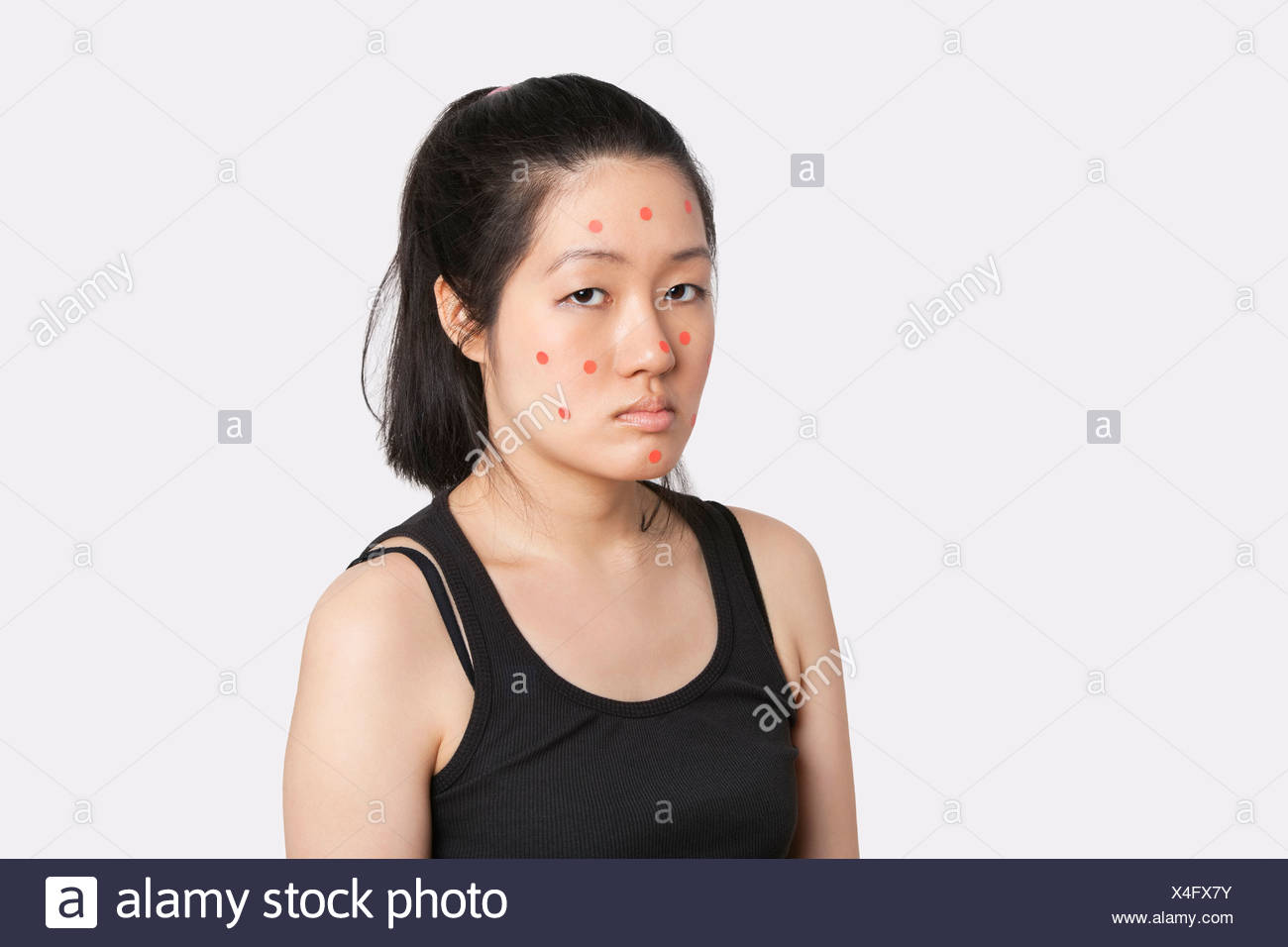 Portrait of an young woman suffering from measles - Stock Image