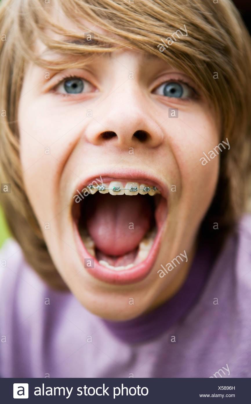 Teenage boy showing braces, close-up - Stock Image