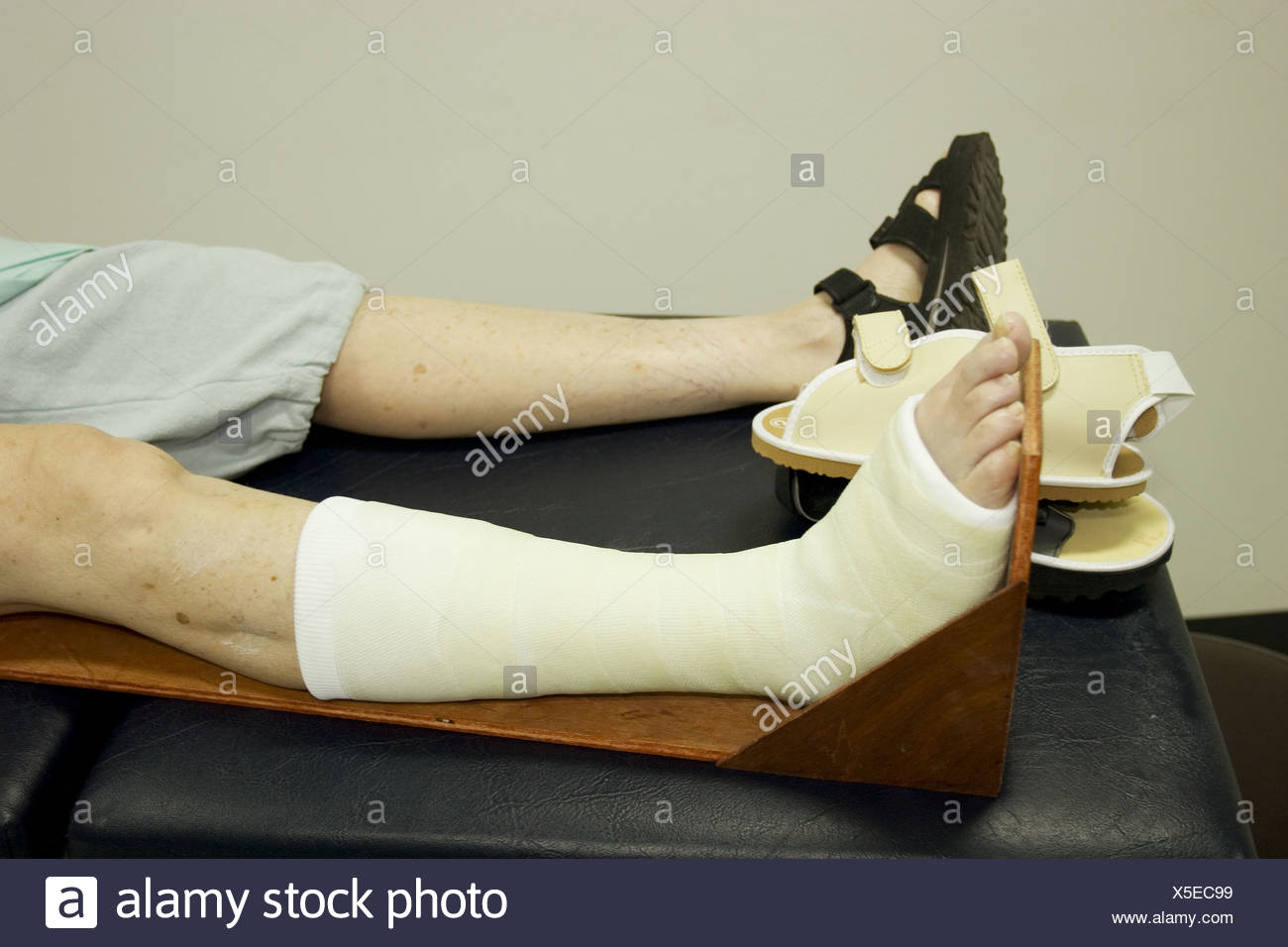 Cast On Leg Low Angle View Focus On Foot Thailand Stock Photo Alamy