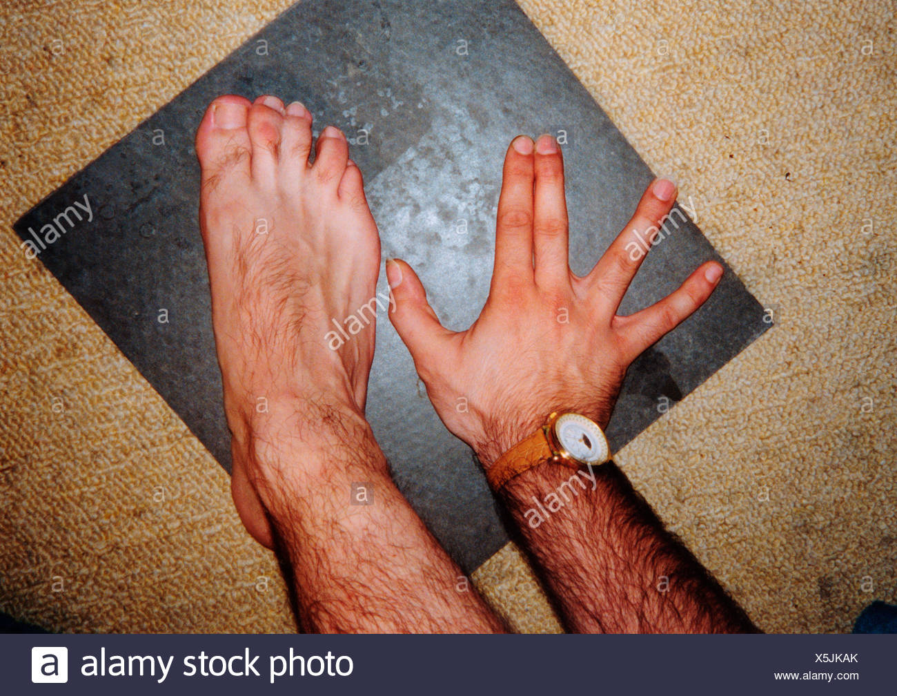man with webbed toes which are joined together uk stock photo