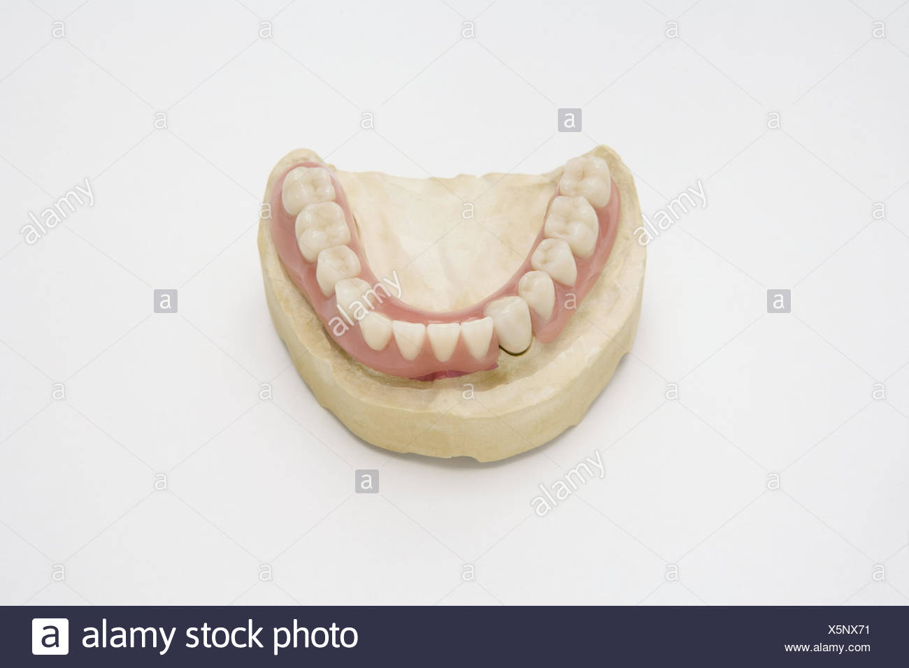 Denture, lower jaw, gypsum model, set dentures, cog laboratory, prosthesis, bite, cogs, cog precaution, dentistry, health, health policy, product photography, - Stock Image