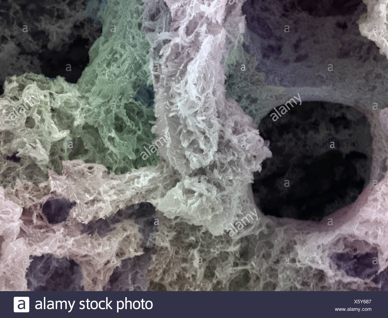 SEM of chemically deposited Silver on metallic substrates - Stock Image