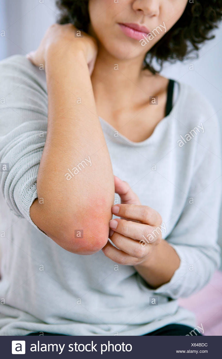 Dating a girl with psoriasis