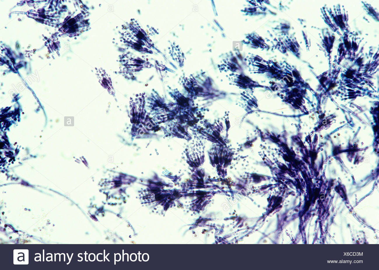 Penicillium sp asexual reproduction pictures