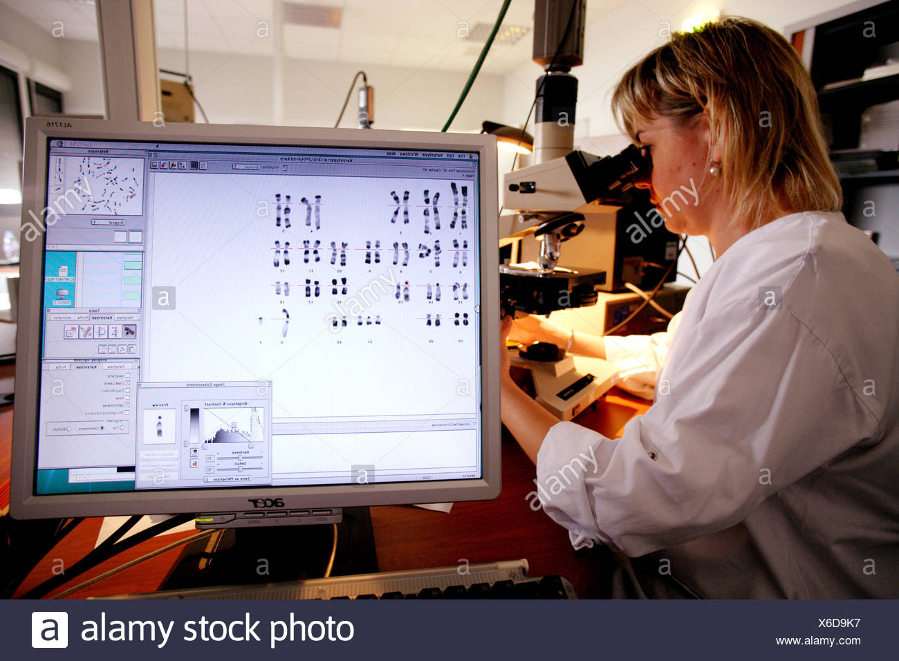 Antenatal diagnosis : study of a karyotype with Down syndrome Cytogenetics and reproductive biology unit, Limoges hospital, - Stock Image