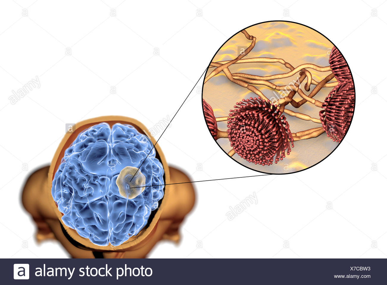 Aspergilloma of the brain and close-up view of Aspergillus fungi, computer illustration. Also known as mycetoma, or fungus ball, this is an intracranial lesion produced by Aspergillus fungi in immunocompromised patients. - Stock Image