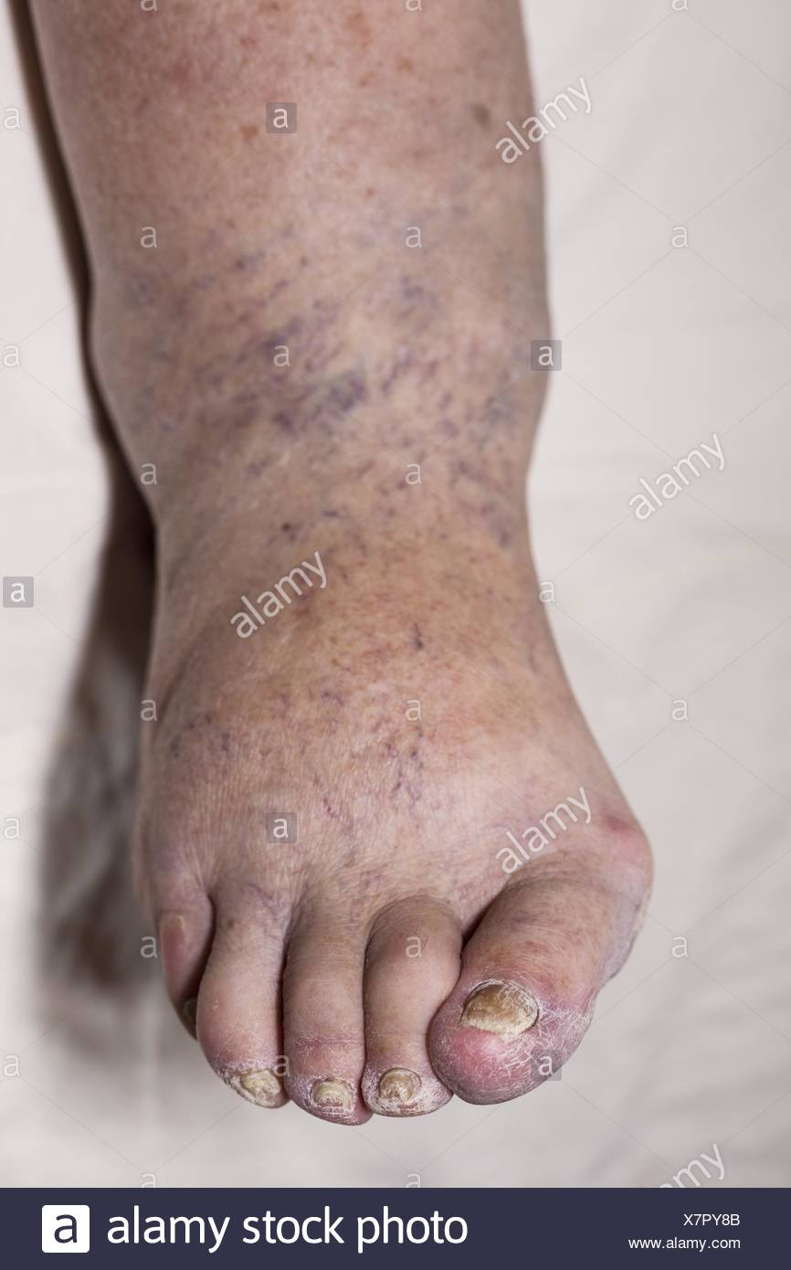 Detail of ill senior female swollen leg with damaged toes and nails. - Stock Image
