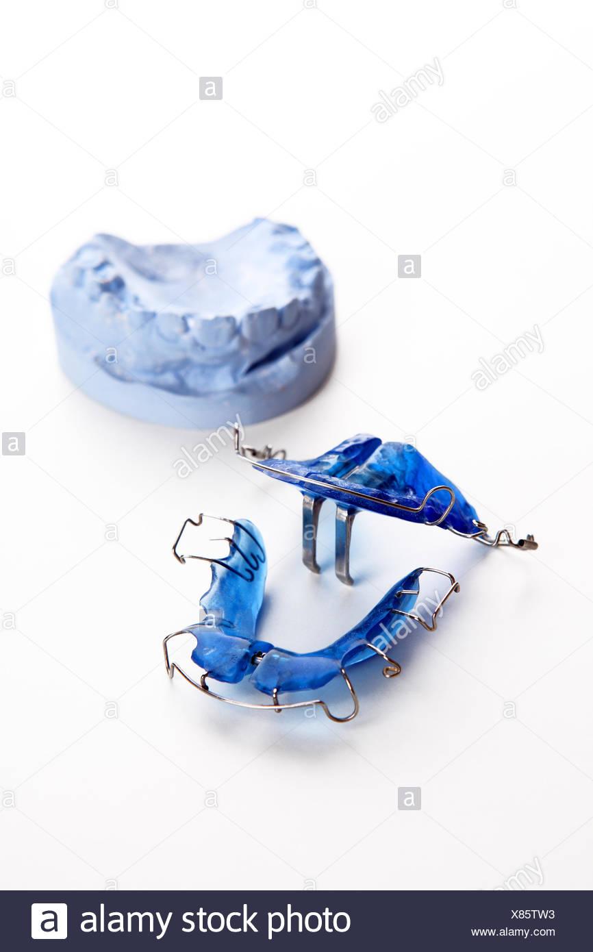 Dental brace Stock Photo