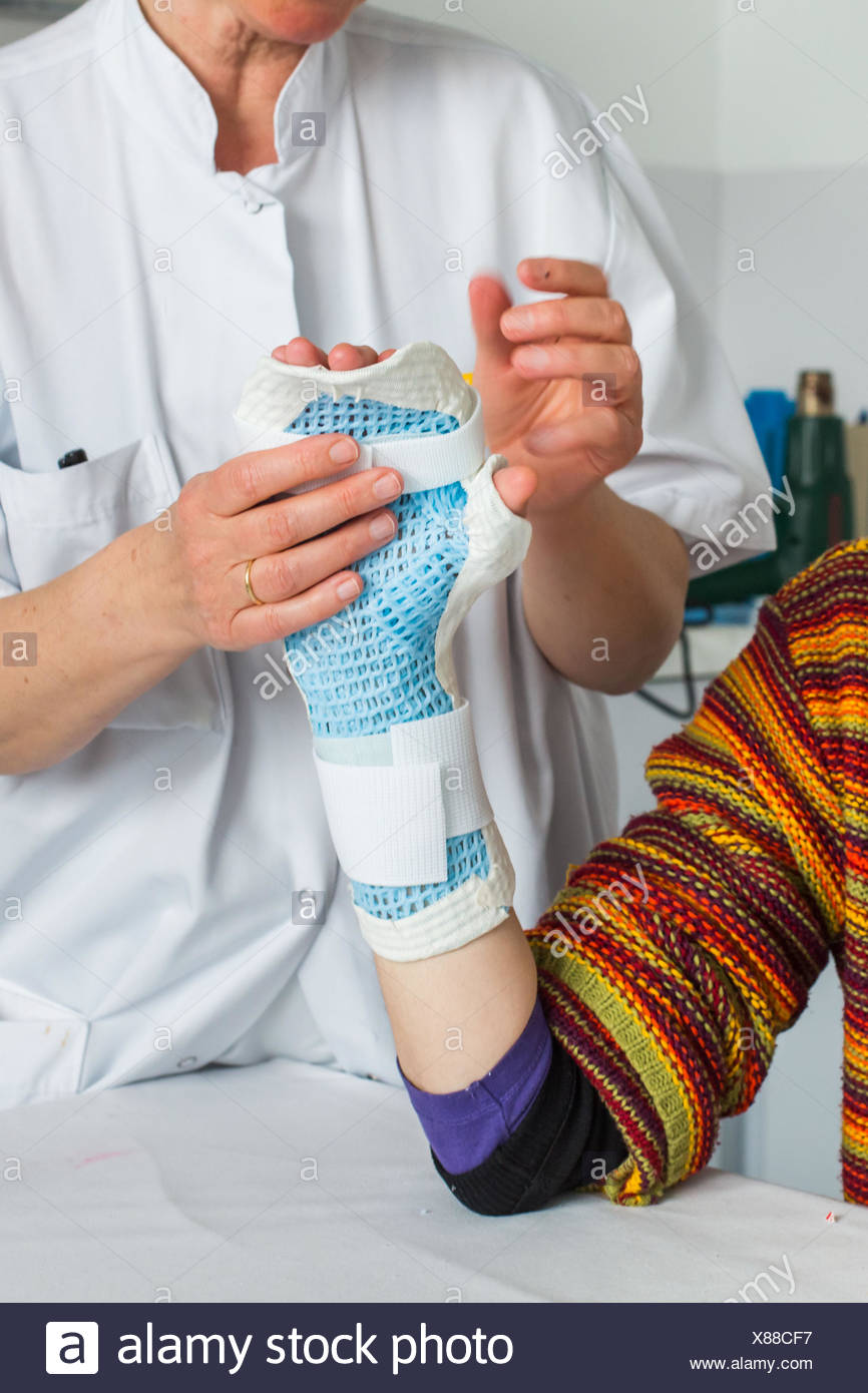 Patient with rheumatoid arthritis and physiotherapist, Fabrication of an orthosis (brace) resting on hands. - Stock Image