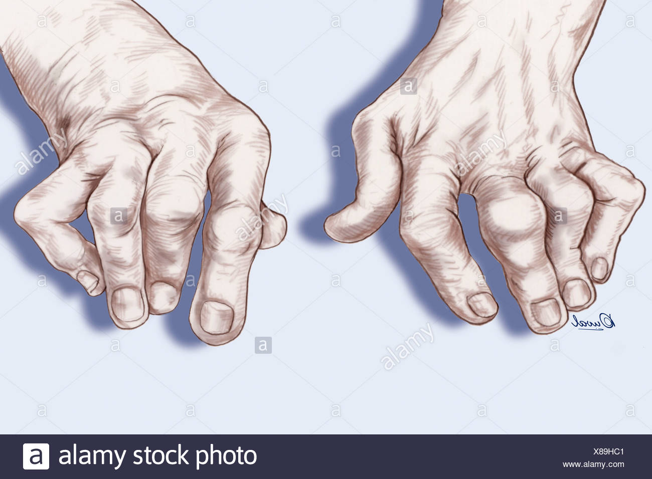 Rheumatoid Arthritis Hands Stock Photos \u0026 Rheumatoid