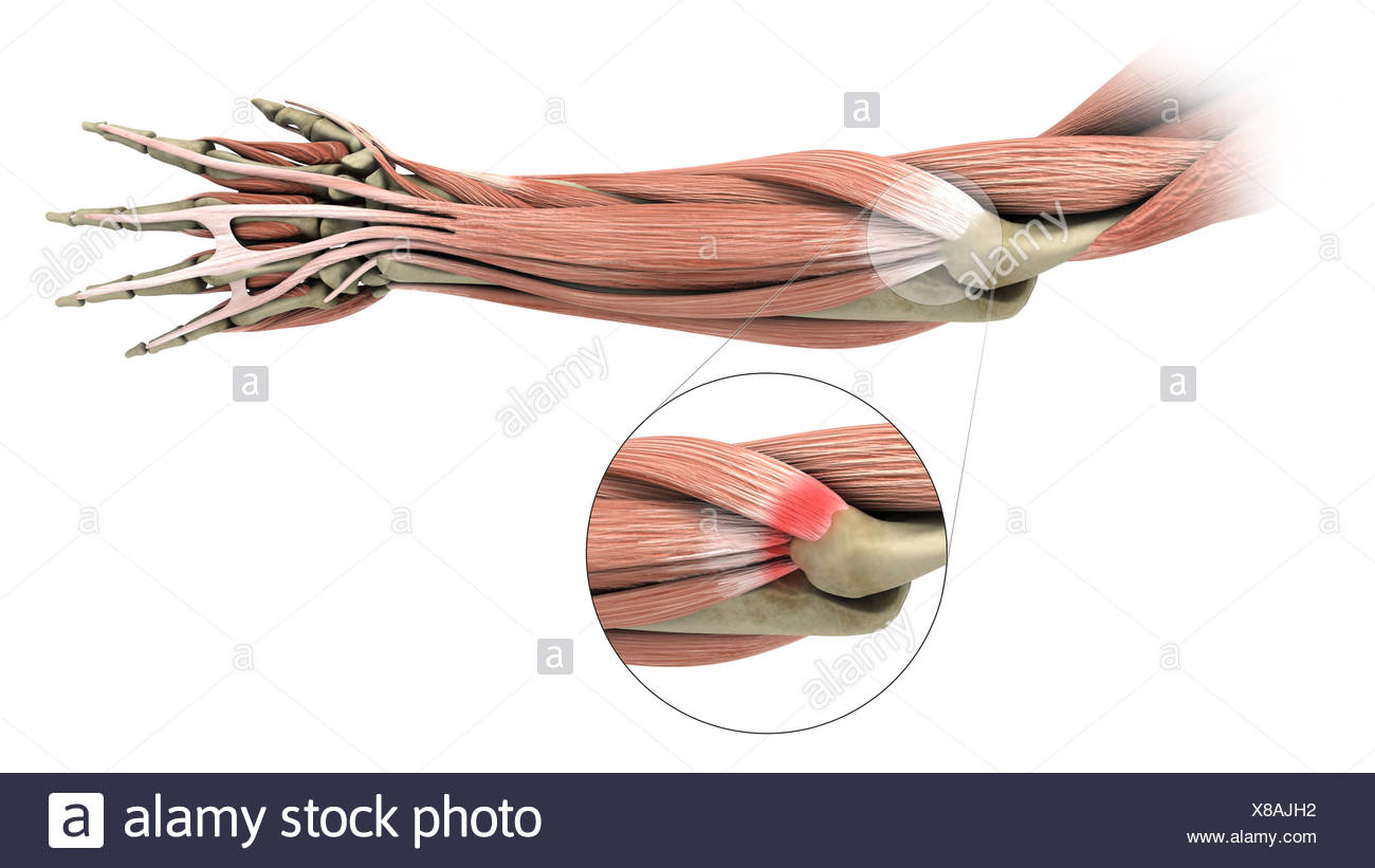 Illustration of a tennis elbow (lateral epicondylitis Stock Photo ...