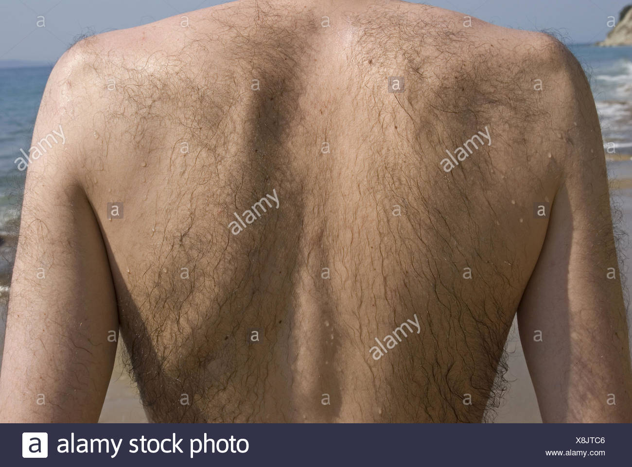 Back hairy picture