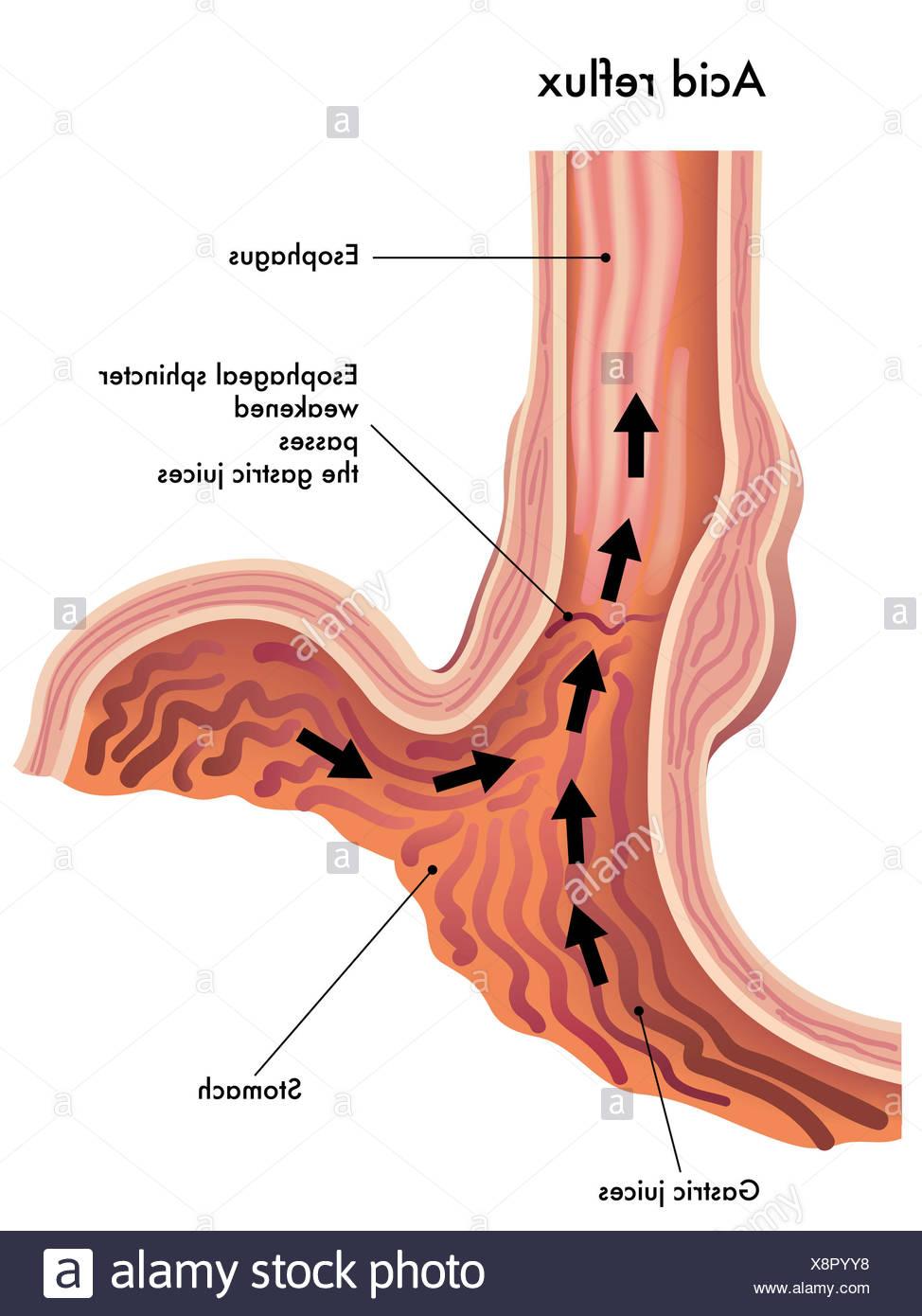 stomach oesophagus esophagus Stock Photo: 280788012 - Alamy
