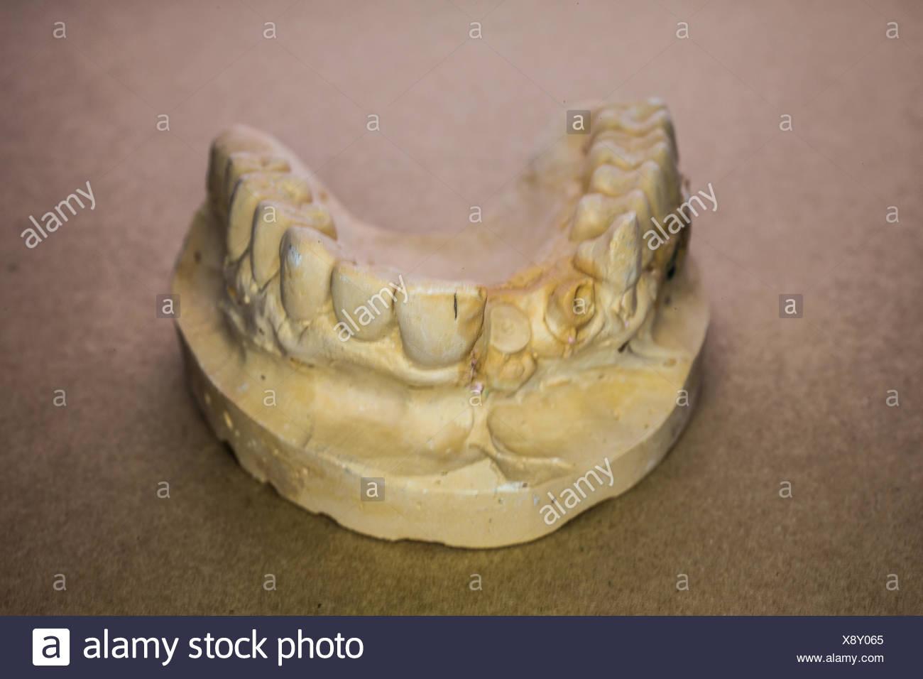 maxillary impression - Stock Image