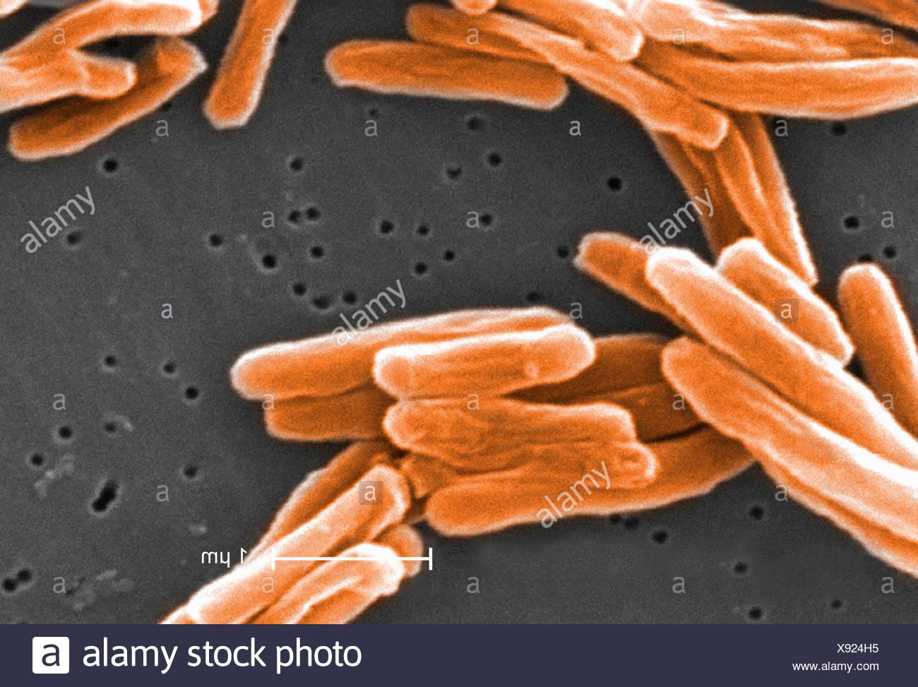 Electron micrograph of Mycobacterium tuberculosis - Stock Image