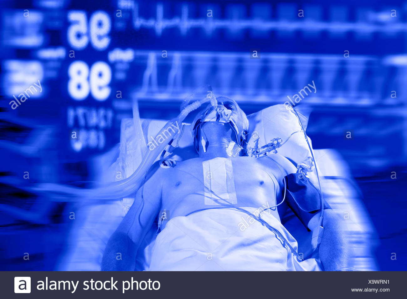 MODEL RELEASED Intensive care patient - Stock Image