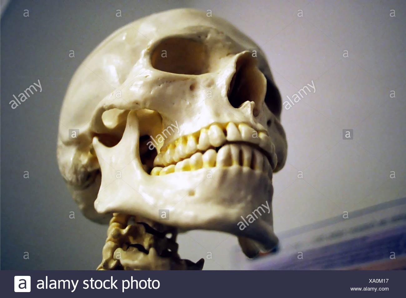 Zygomaticum Stock Photos & Zygomaticum Stock Images - Alamy