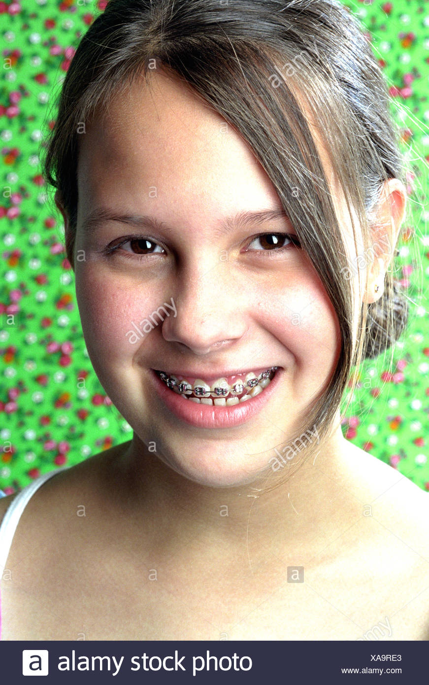 Consider, Young teen girls braces facial recommend you