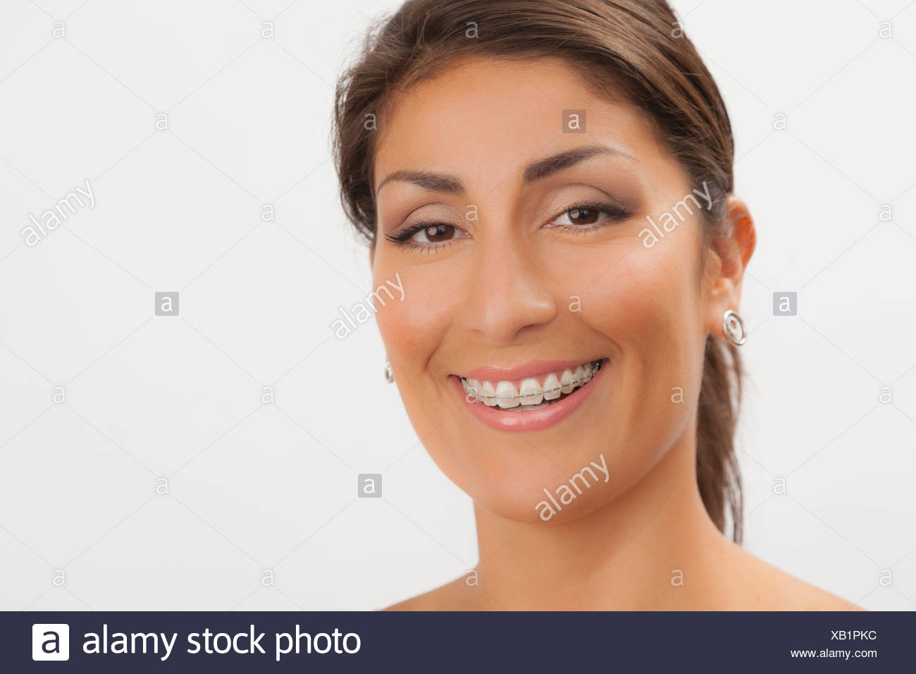 Adult orthodontic appliance or brace stock photo