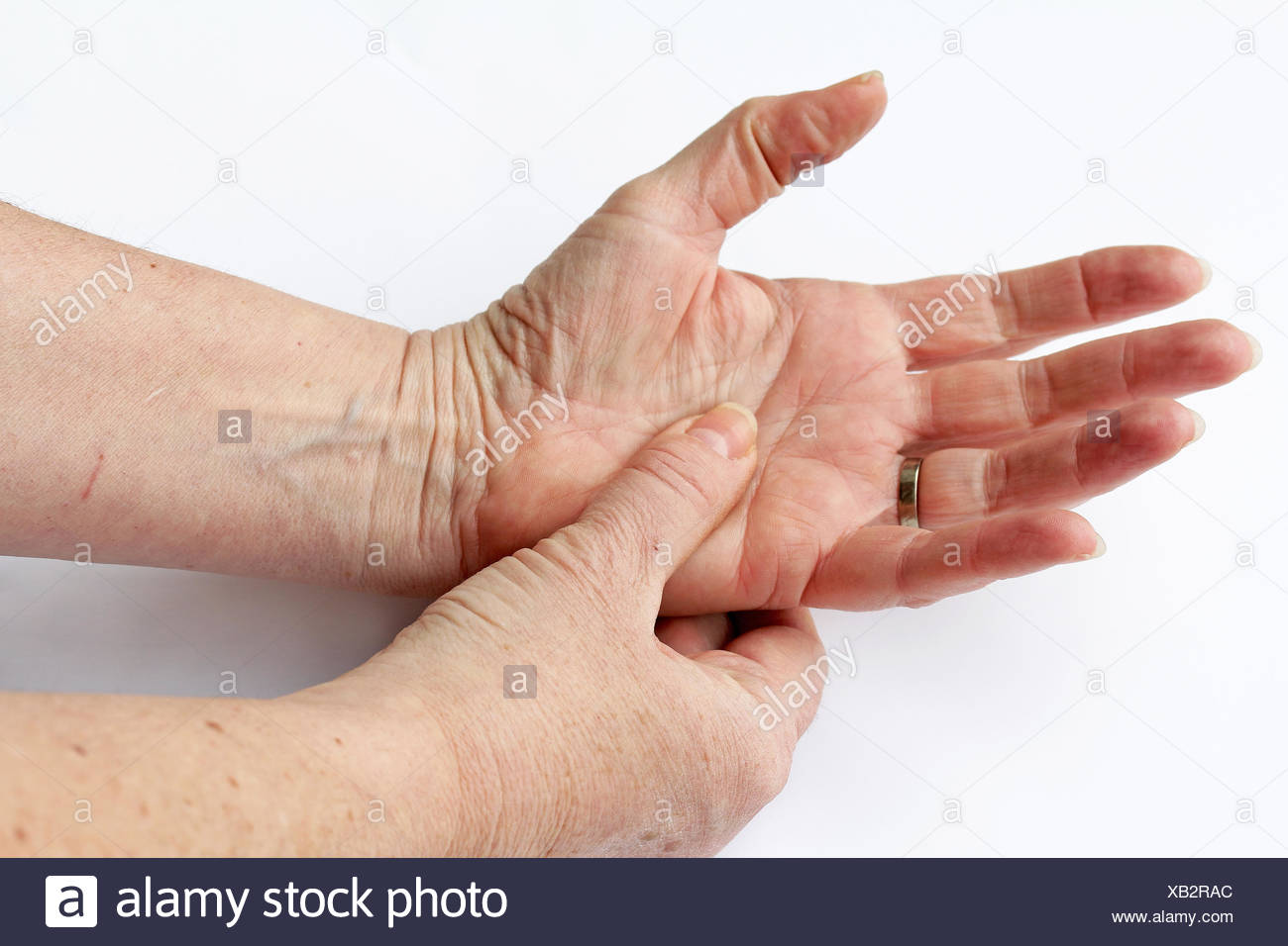 an elderly woman has pain in his hands - Stock Image