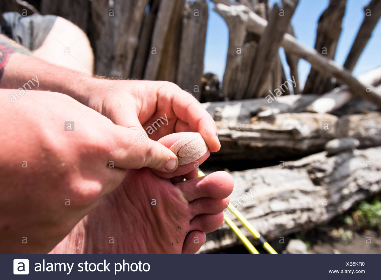 A hiker covering his blisters. - Stock Image