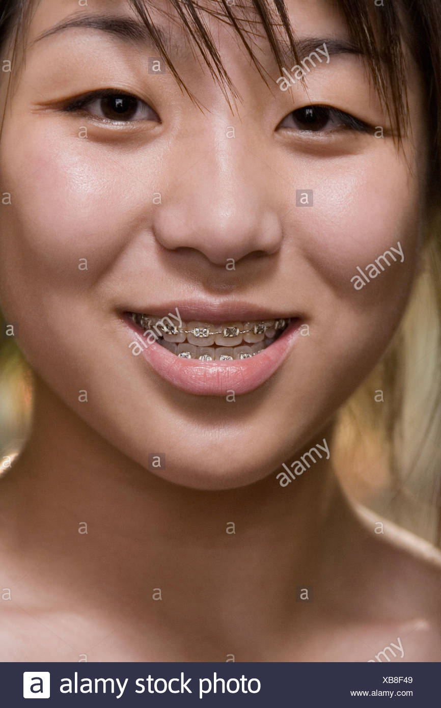 Portrait of a young woman with braces on her teeth - Stock Image