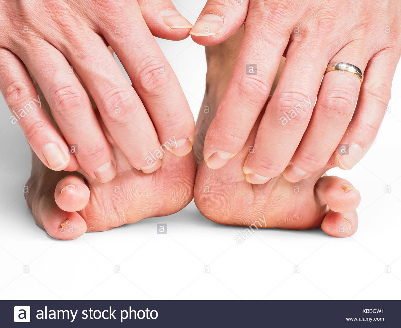 Hands pulling toes on barefoot feet - Stock Image