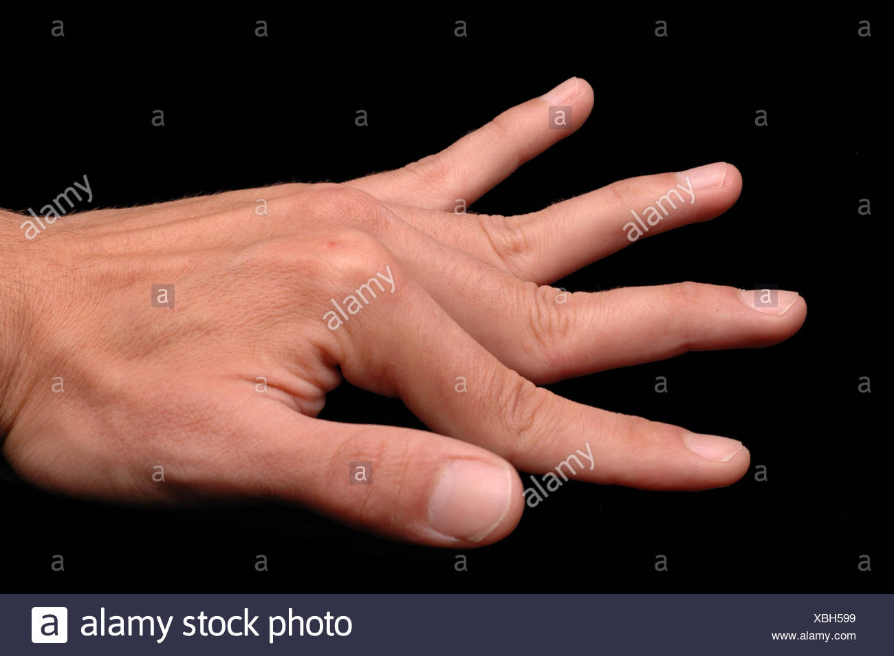 Ehlers Danlos Syndrom Stock Photos & Ehlers Danlos Syndrom Stock ...