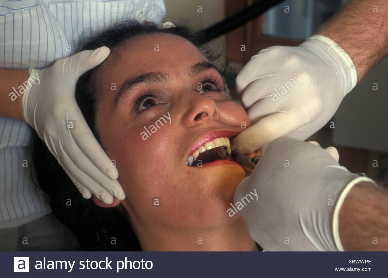 anglo-israeli woman at dentist having tooth extraction - Stock Image