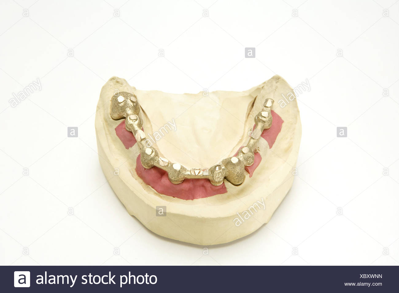 Set dentures, crowns, gypsum model, cog laboratory, denture, prosthesis, bite, loosely, gold teeth, cog precaution, dentistry, health, health policy, product photography, - Stock Image