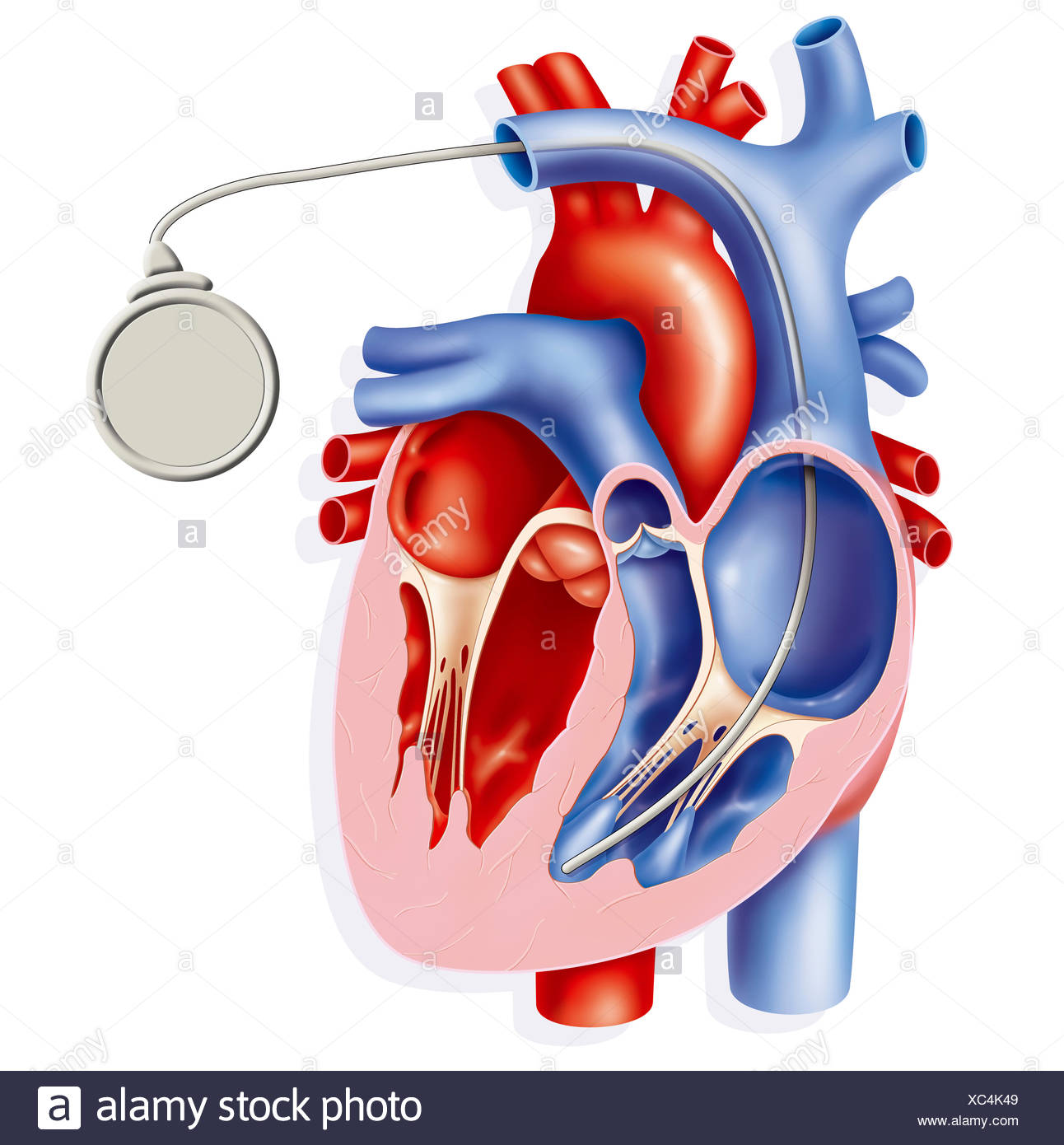 PACEMAKER - Stock Image