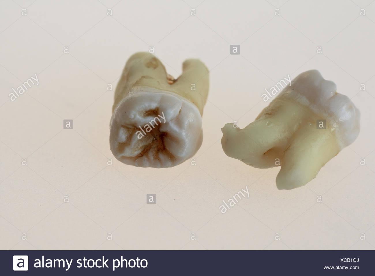 Third Molars - Stock Image