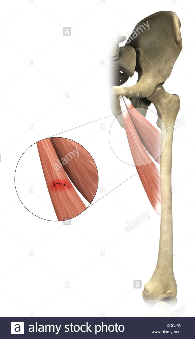 Illustration of an adductor strain - Stock Image