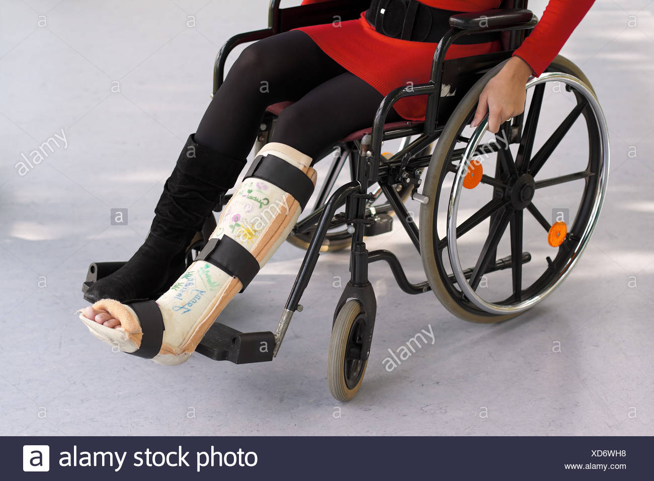 Woman with leg cast - Stock Image