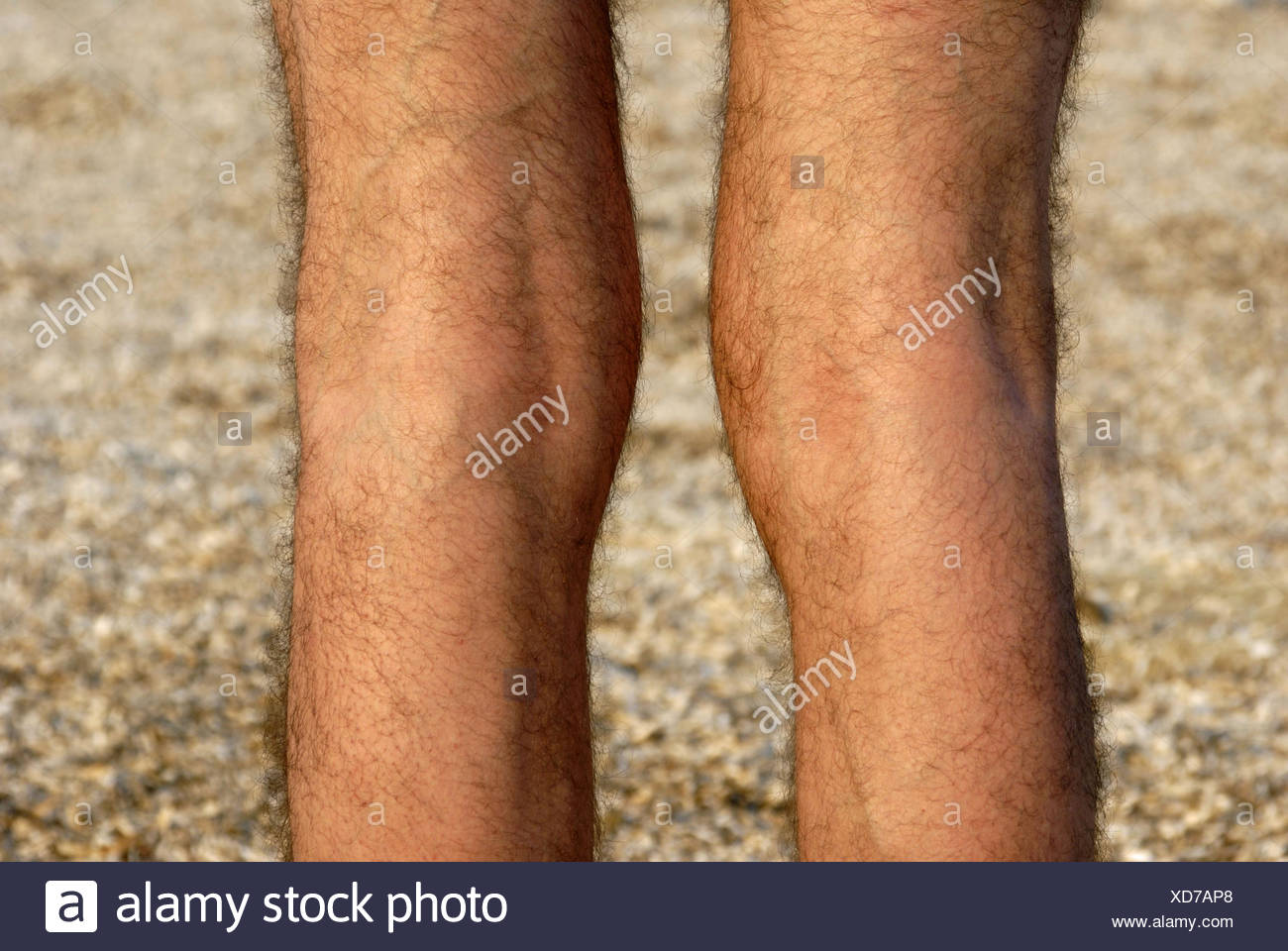 hairy legs pic hairy legs stock photos hairy legs stock images alamy 7864