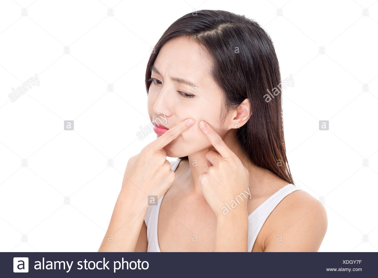 Young woman Squeezing pimple - Stock Image